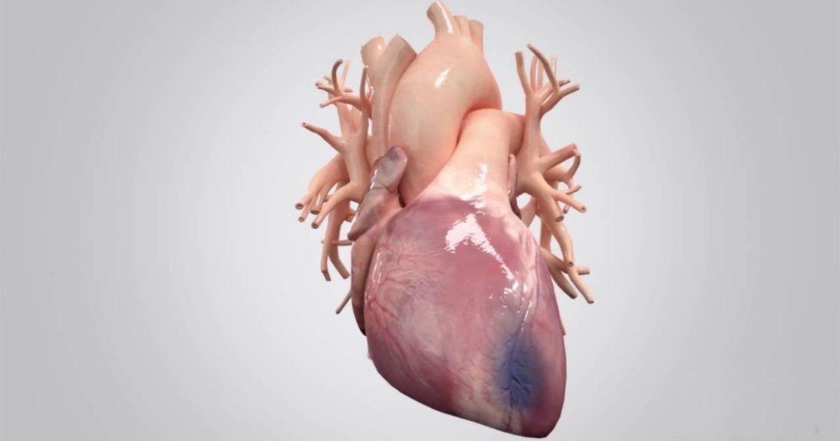 Трансмуральный инфаркт — Сердце