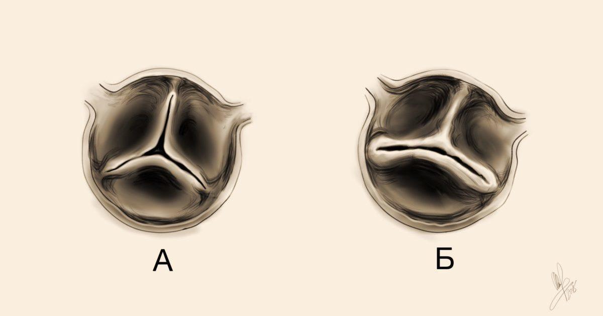 Двухстворчатый аортальный клапан у ребенка