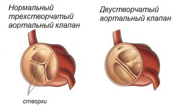 Двухстворчатый аортальный клапан у детей прогнозы