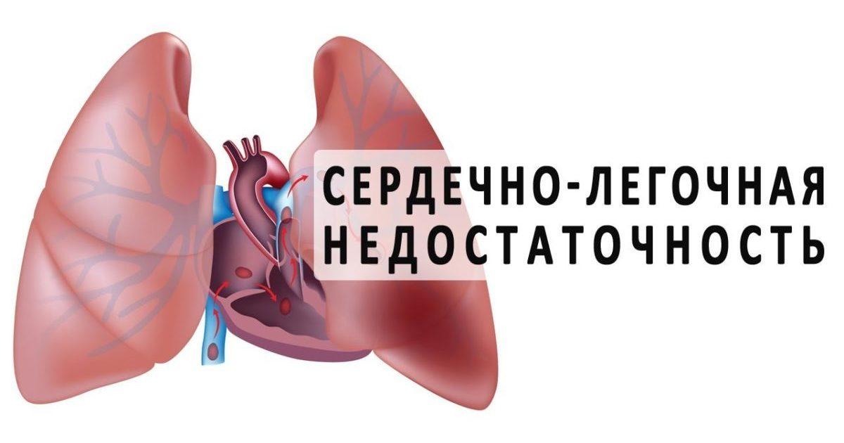 Смерть от сердечной недостаточности как происходит