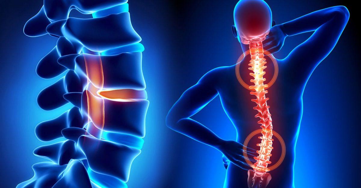 Может ли при шейном остеохондрозе повышаться артериальное давление