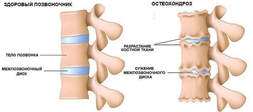 Изображение - Шея и повышенное давление osteohondroz-simptomy