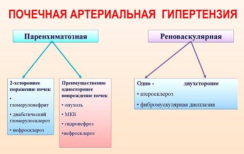 Изображение - Симптоматические артериальные гипертонии pochechnaya-arterialnaya-gipertenziya