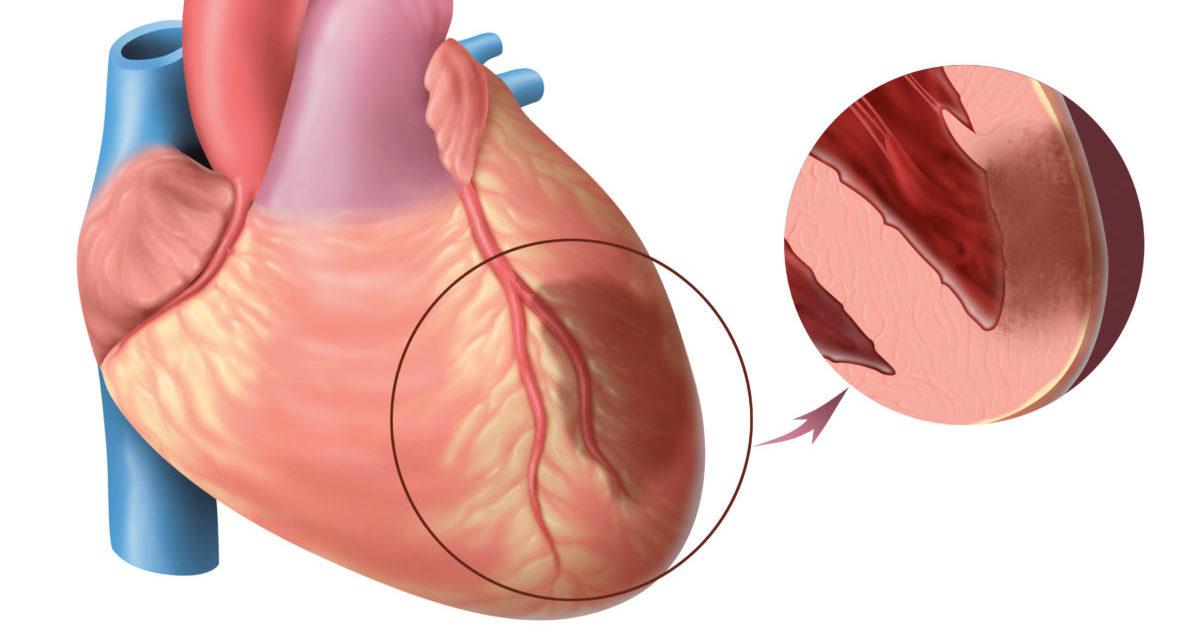 Обширный инфаркт последствия шансы выжить — Сердце