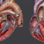 Сердечные патологии