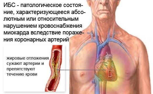 Изображение - Лозон таблетки от давления IBS-chhema-suzheniya-arteriy