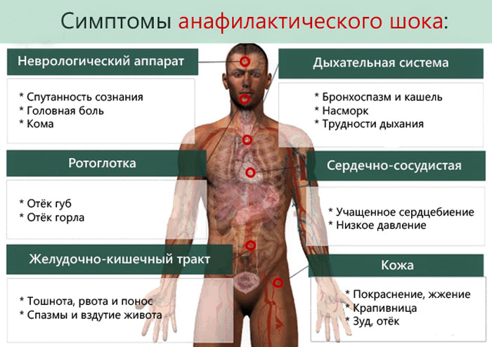 Изображение - Лозон таблетки от давления anafilakticheskiy-shok_1