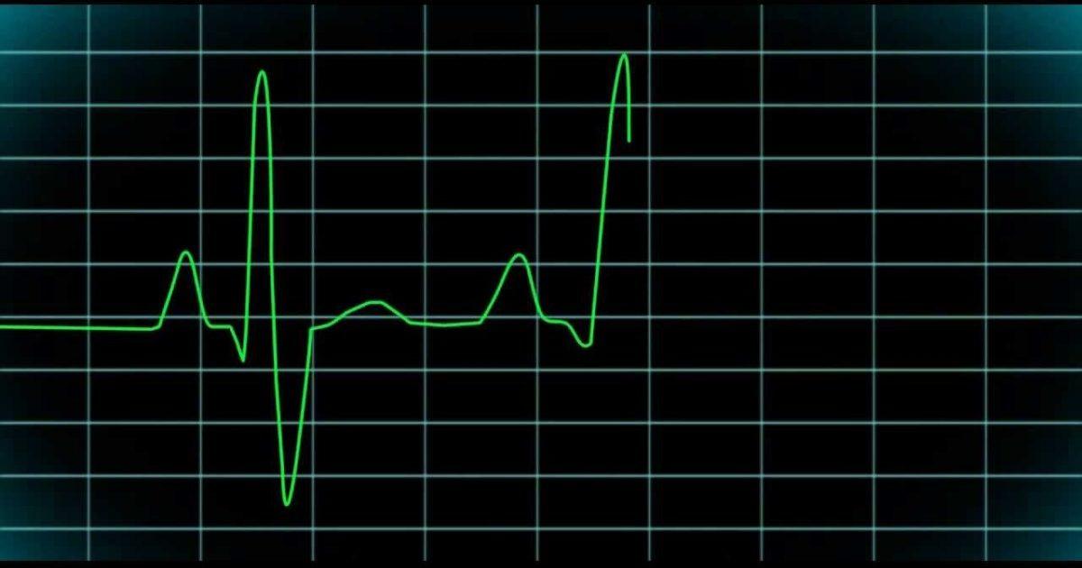 Синусовая брадикардия сердца - что это такое, симптомы и лечение