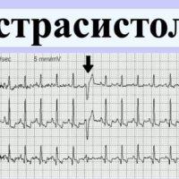 Патологии сердечного ритма
