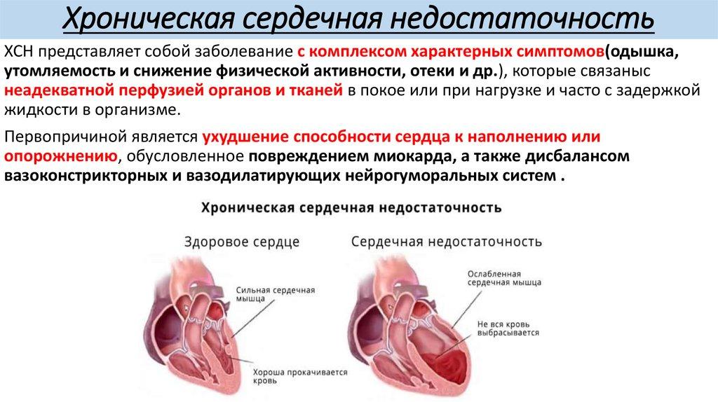 Изображение - Лозон таблетки от давления slide-1-26