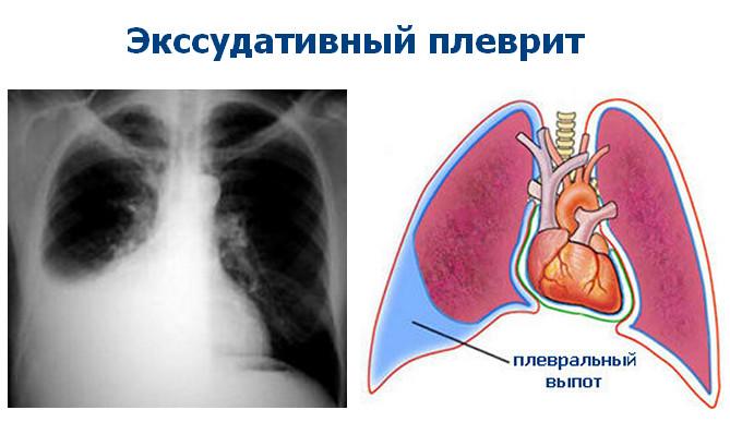 Изображение - Болят суставы после лечения туберкулеза легких ekssudativnyj-plevrit