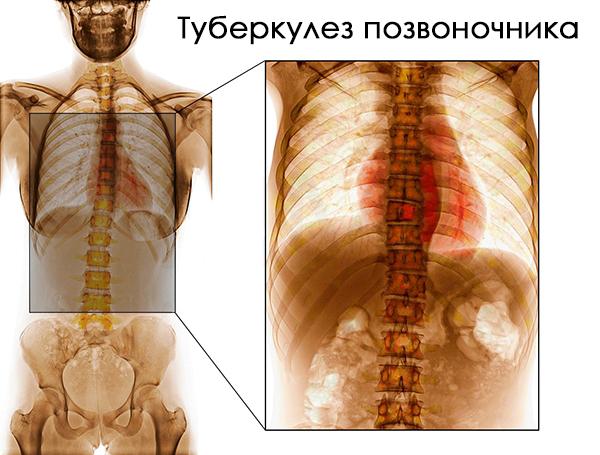 Изображение - Болят суставы после лечения туберкулеза легких tp1