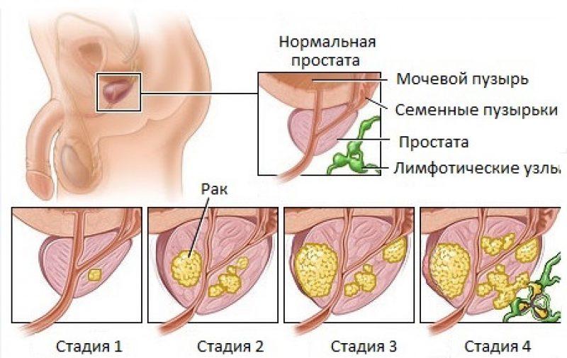 Новообразование предстательной железы