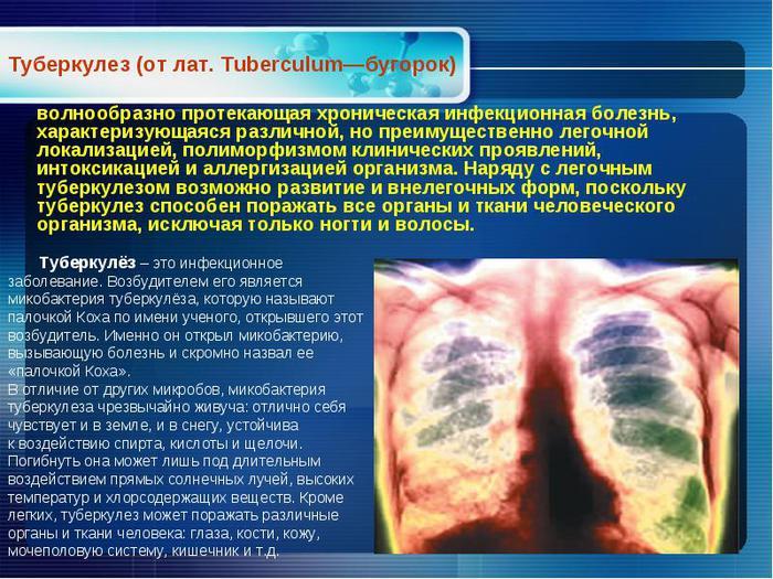 Туберкулез лечение народными средствами в домашних условиях