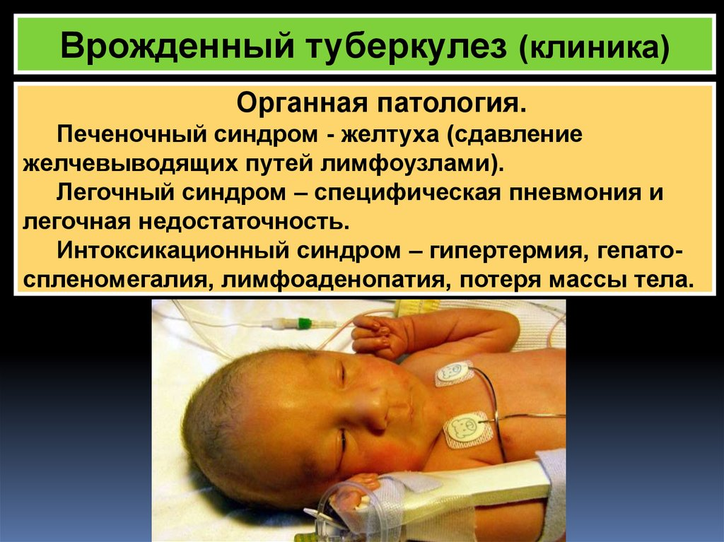 Врожденный туберкулез
