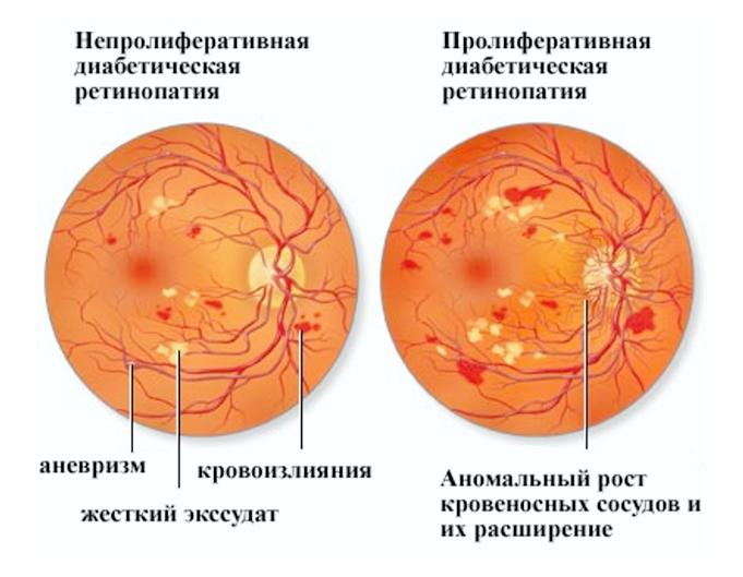 Патология сосудов сетчатки