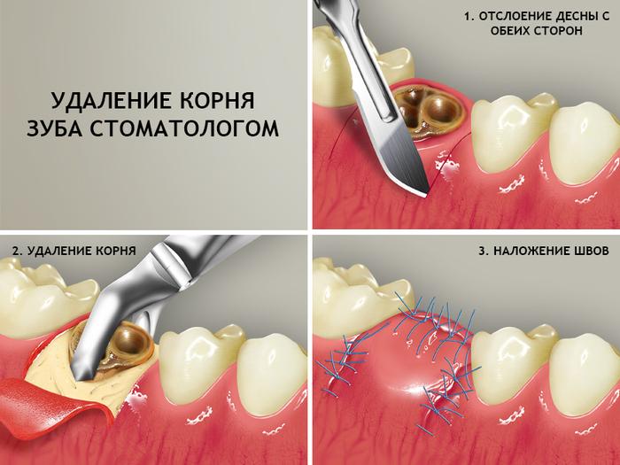 Стоматологическая операция