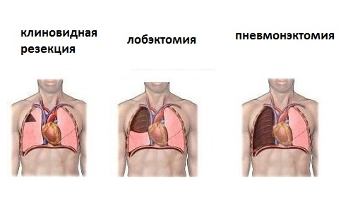 Хирургическое лечение при туберкулезе