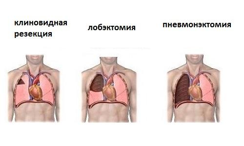 Хирургическое лечение туберкулеза
