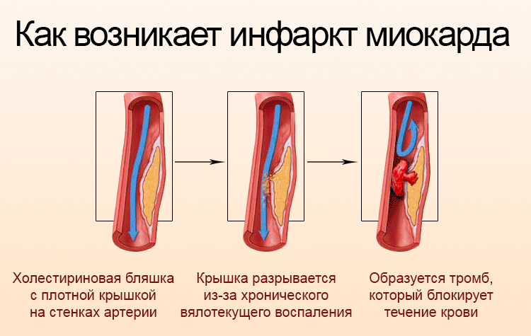 Как возникает ишемия