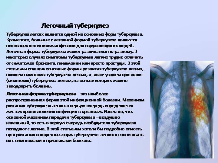 Легочной туберкулез
