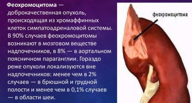 Феохромацитома