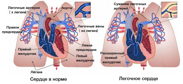 Легочное сердце