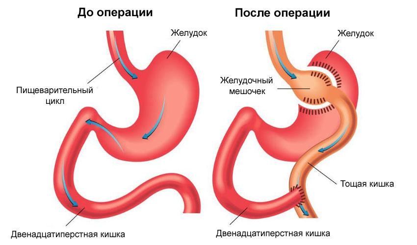Желудочное шунтирование