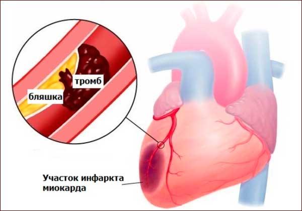 Инфаркт сердечной мышцы