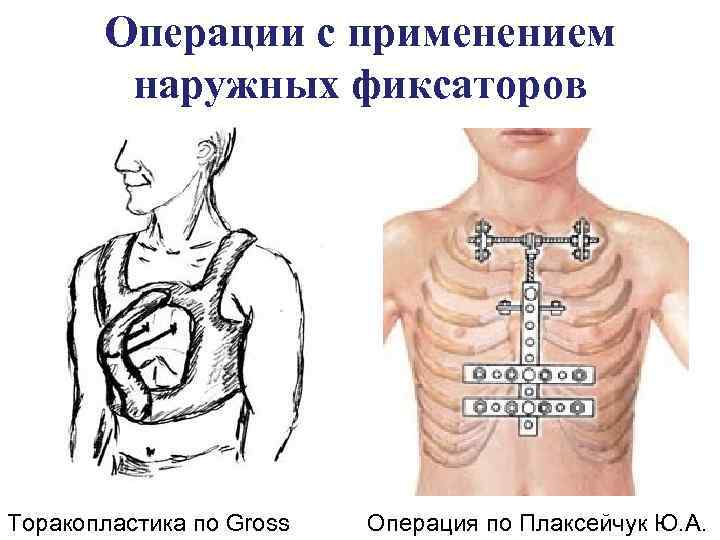 Торакопластика
