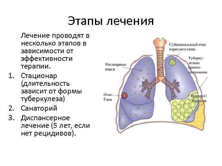 Этапы лечения туберкулеза