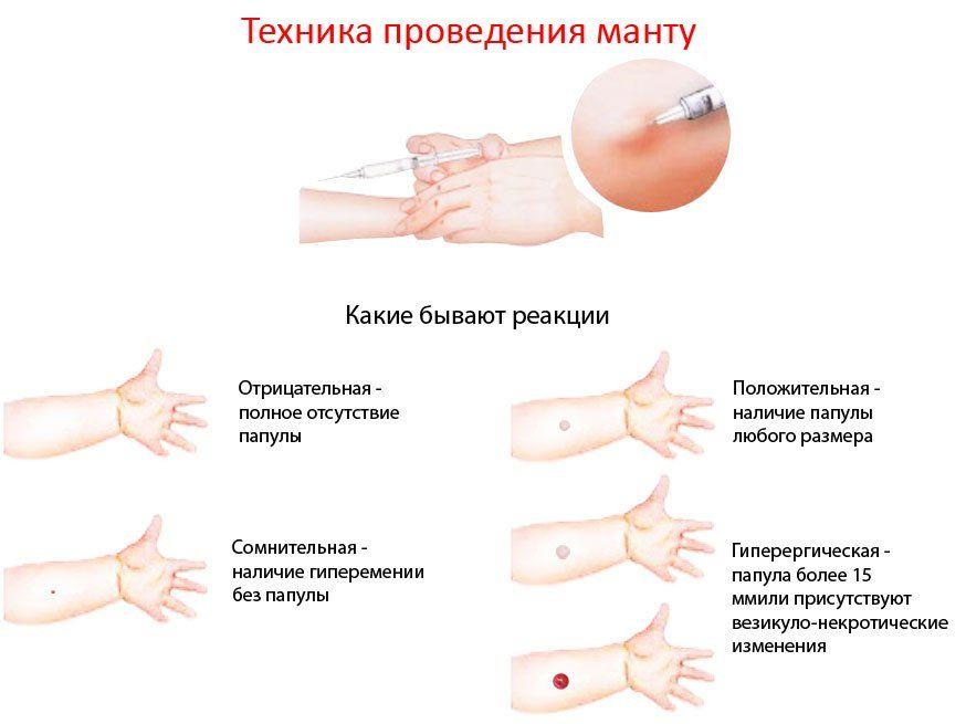 Туберкулиновая проба (Манту)