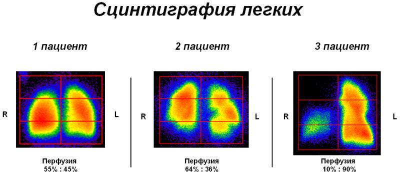 Сцинтиграфия легких