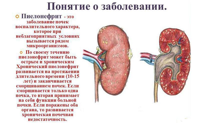 Пиеолонефрит