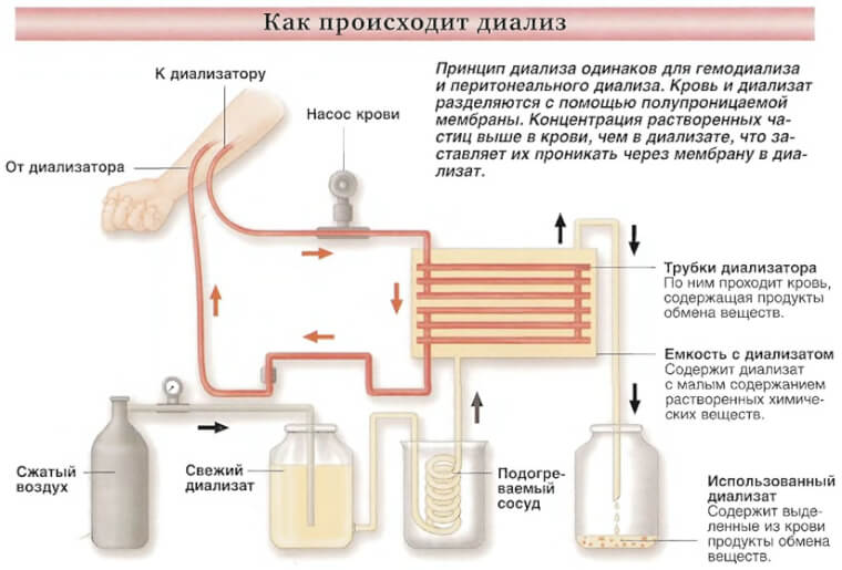 Гемодиализ