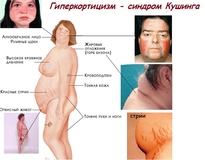 Синдром Иценка-Кушинга