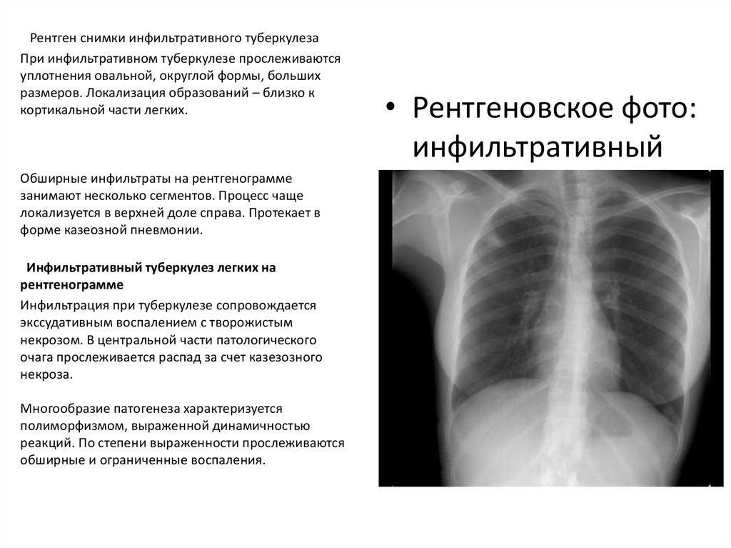 Рентгенодиагностика туберкулеза