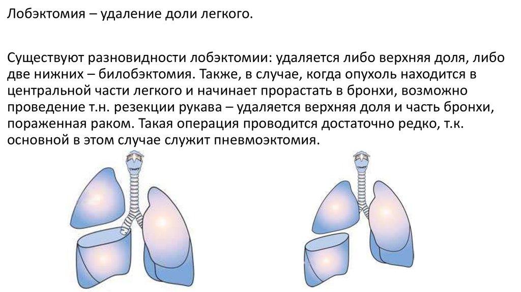 Лобэктомия