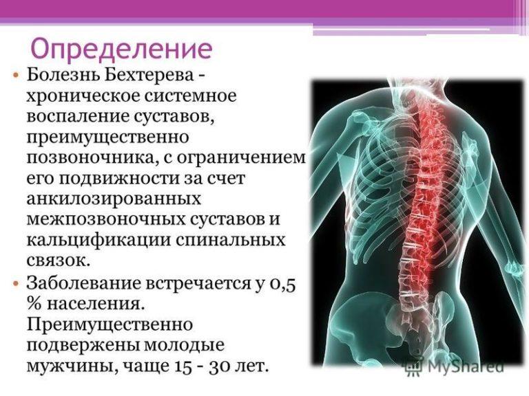 Санаторное лечение ювенильного артрита