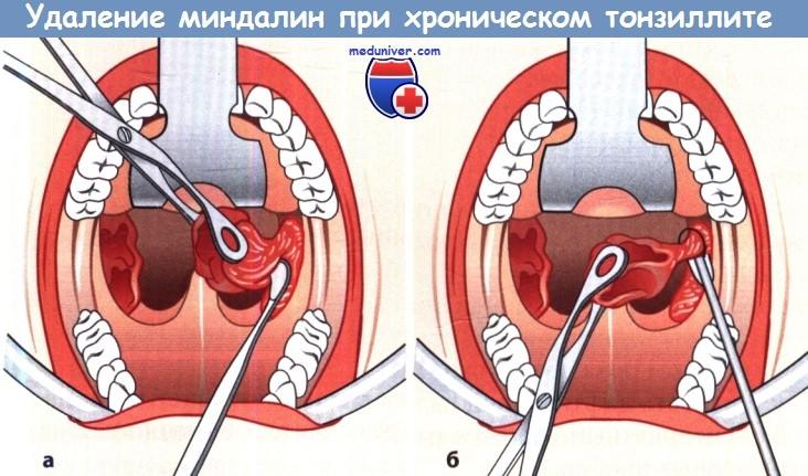 Тонзиллэктомия