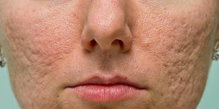 Келоидные рубцы на лице