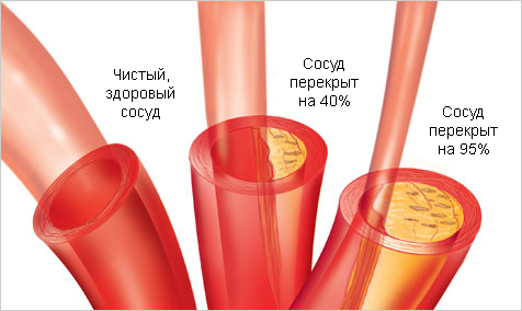 Накопление холестерина в сосудах