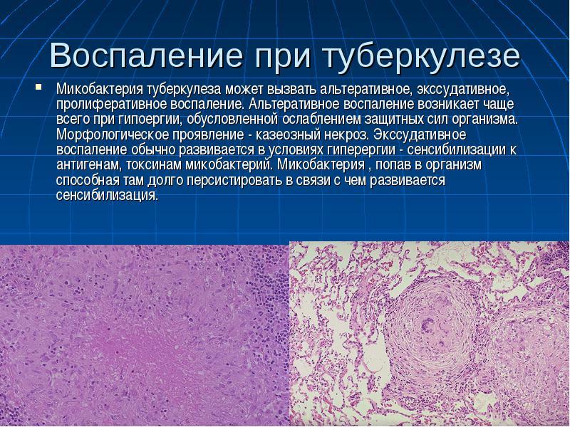 Воспаление при туберкулезе