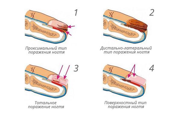 Классификация онихомикоза