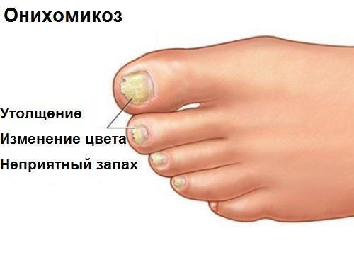 Онихомикоз