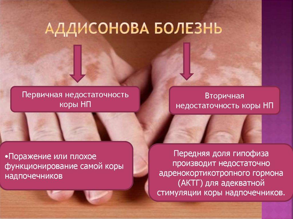 Аддисонова болезнь