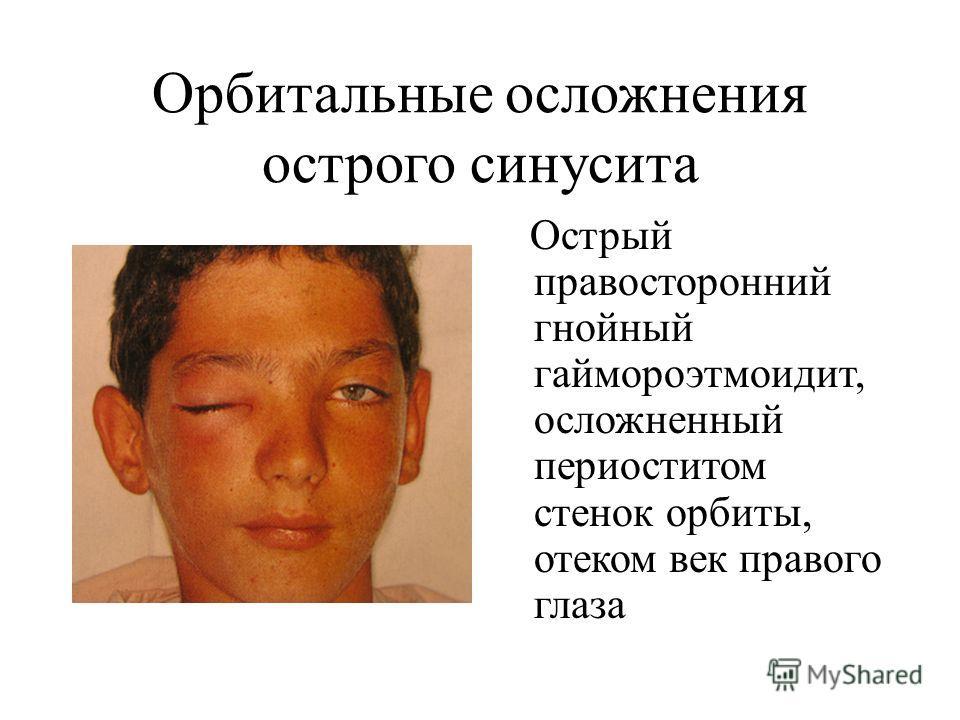 Осложнение синусита