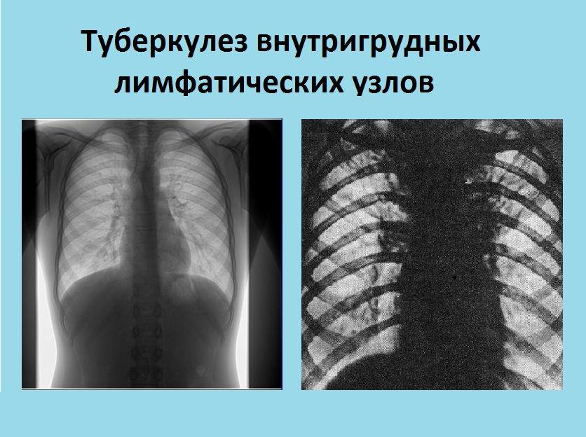 Туберкулез внутригрудных лимфоузлов