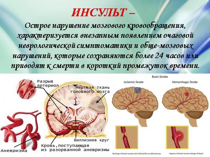 Отсрое нарушение мозгового кровообращения