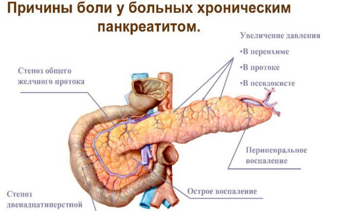 Проблема поджелудочной железы